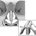 Išplečiantys implantai (spreader graft)