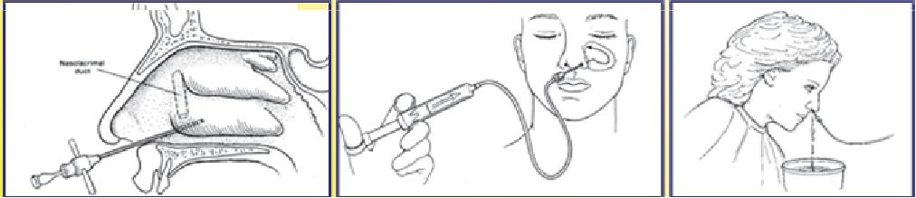 sinus puncture
