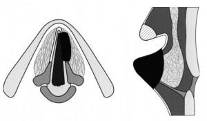 III tipo chordektomija